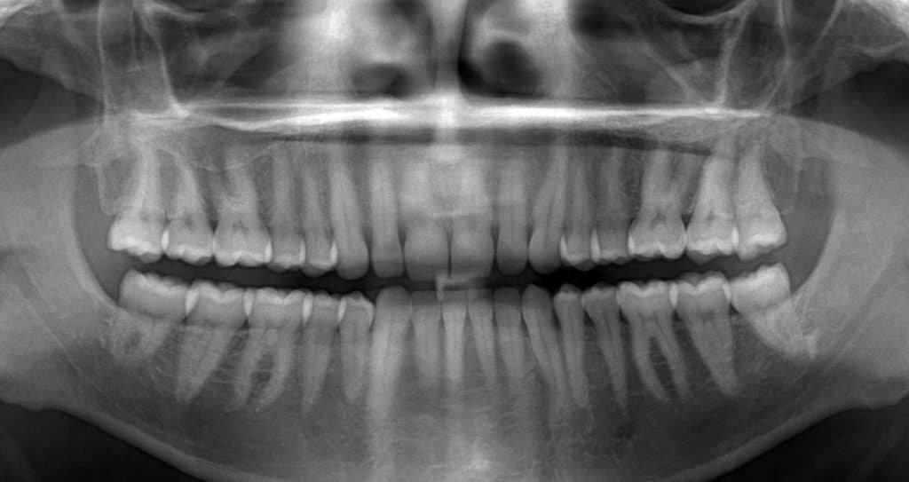 Рентген зуба при грудном вскармливании